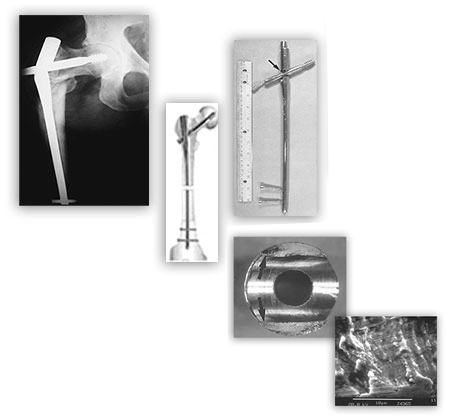 Hip X-Ray and Hip Implant